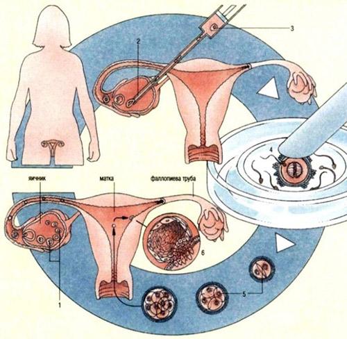 Как вылечить бесплодие у женщин
