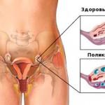 Лекарства от эндометриоза