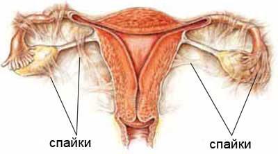 Симптомы бесплодия у женщин