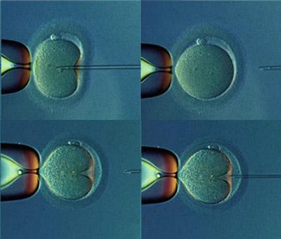 Некрозооспермия: лечение