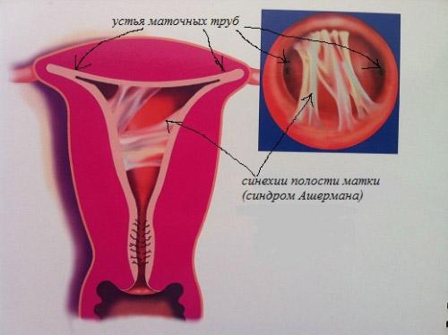 Что такое внутриматочные синехии?