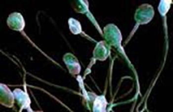 Причины возникновения азооспермии