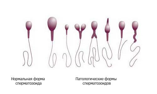 Наличие аномальных сперматозоидов